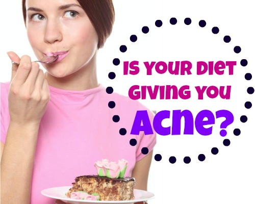 can-diet-cause-acne