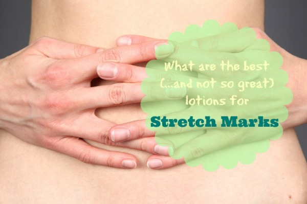 best-lotion-for-stretch-marks