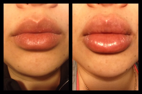 candy lipz before and after